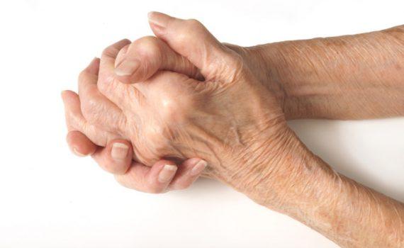Hands affected by arthritis